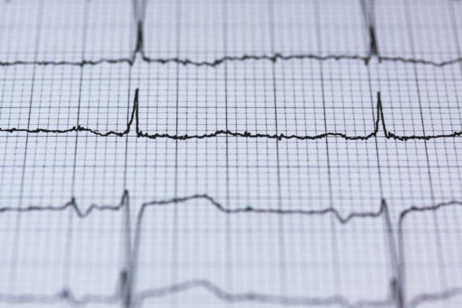 Cardiac Arrest Info Sligo