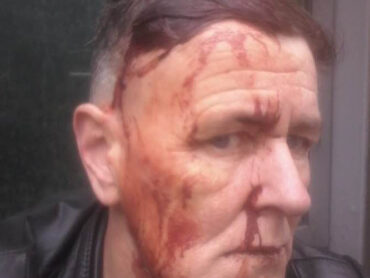 Two years jail for man who attacked Leitrim LGBT+ activist